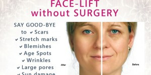 face-lift-without-surgery